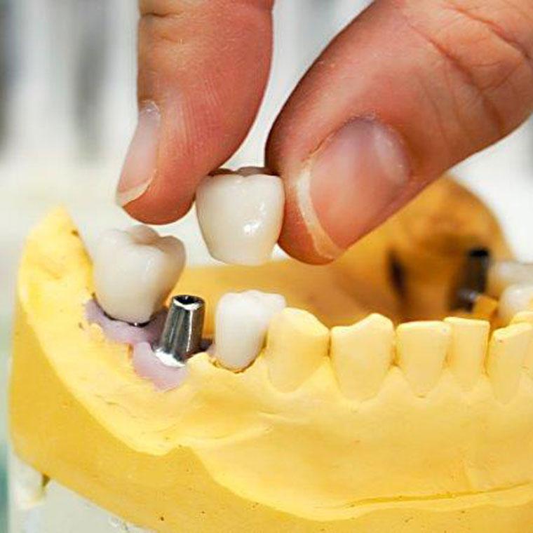 Implantologie bei Zahnarzt Dr. Hoffmann