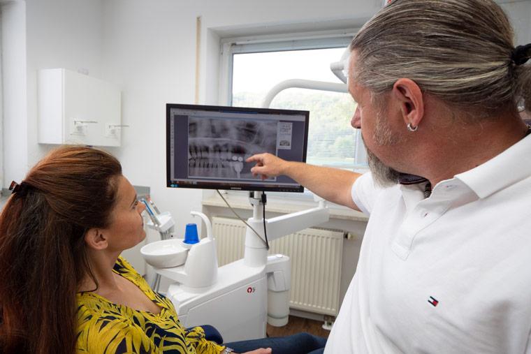 Röntgenaufnahmen von Zähnen