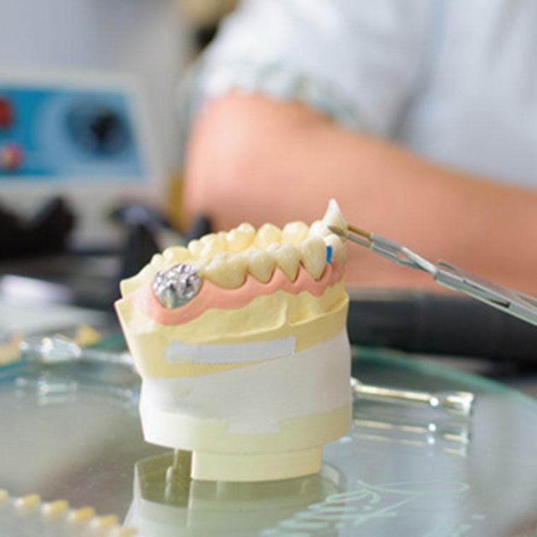 Prothetik - Zahnarzt Dr. Hoffmann in Landshut